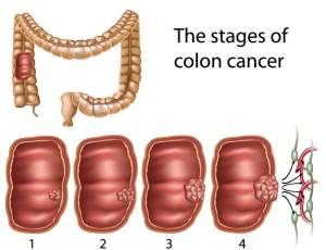 Signs of Colon Cancer Stages