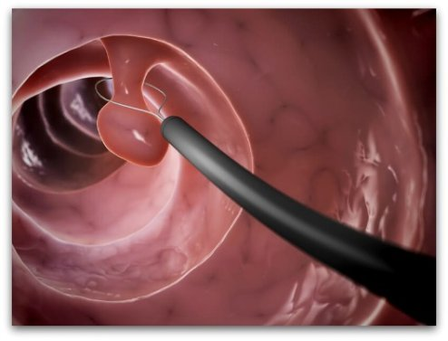 Illustration of polyp removal during a colonoscopy procedure