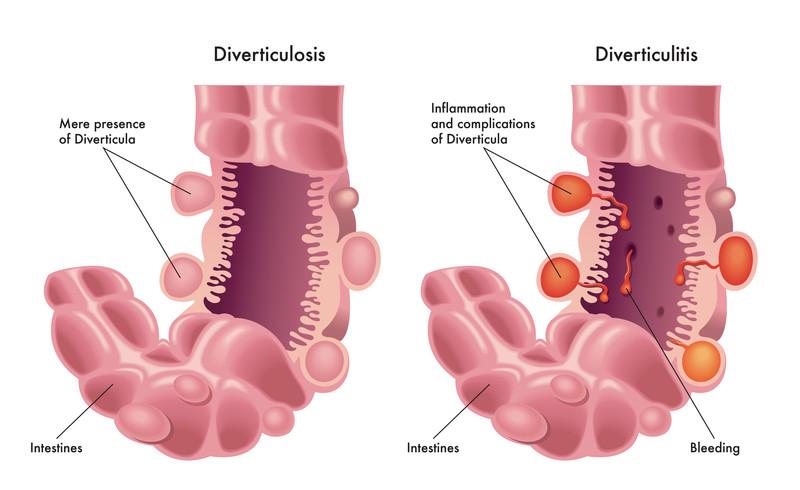 Diverticulitis symptoms - diagrams of colon with diverticulosis and diverticulitis