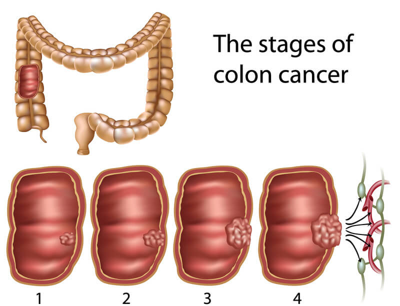 7 Signs Of Colon Cancer Know What To Look For