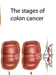 Go to 7 Signs of Colon Cancer - Know What to Look For