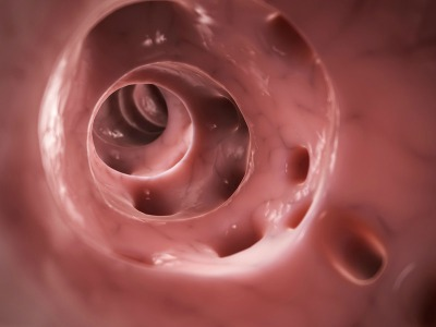Diverticular disease - interior of the colon with openings to diverticula