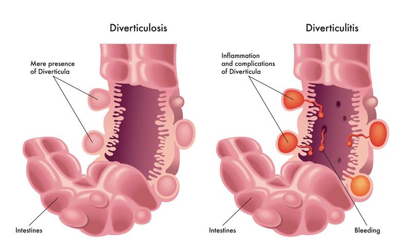 Diverticulitis symptoms - diagrams of colon with diverticulosis and diverticulitis
