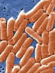 Go to Salmonella Symptoms - Causes, Treatment and Prevention